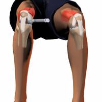 Obat Tradisional Sakit Lutut
