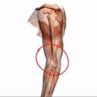 Obat Tradisional Sakit Belakang Lutut
